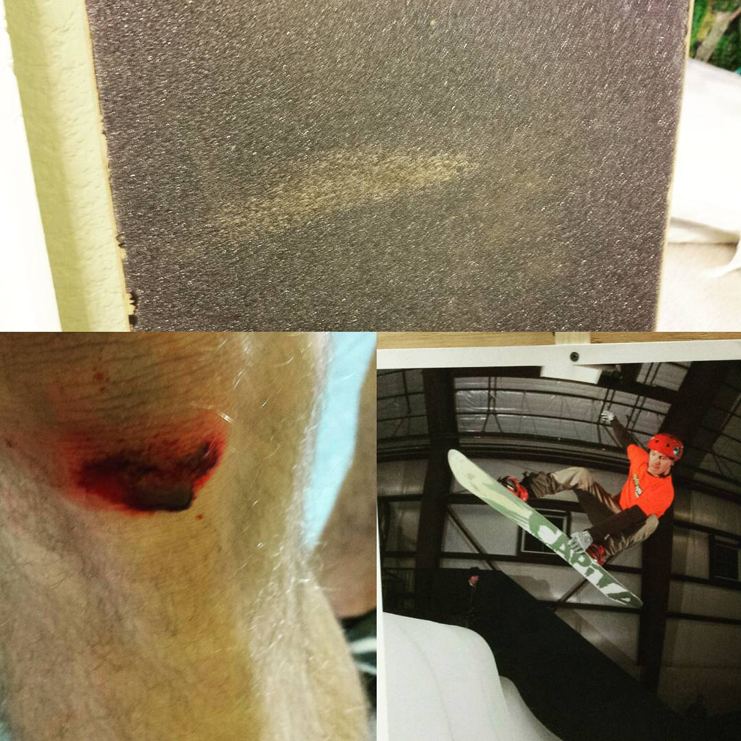 Holy Woodward! So much fun there. Things have changed and you can't ride snowboards anymore but you can still skin your knee so bad that skin and hair stays on your grip tape. @woodwardcopper @davelehl @capitasupercorp #horoscope #fleshwound...