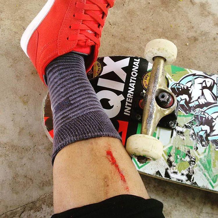 Quem nunca tomou aquela velha e dolorosa skatada na canela? Lavou, tá novo! @marcoscunharibeiro #qixteam #skateboardminhavida
