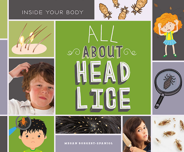 All About Head Lice