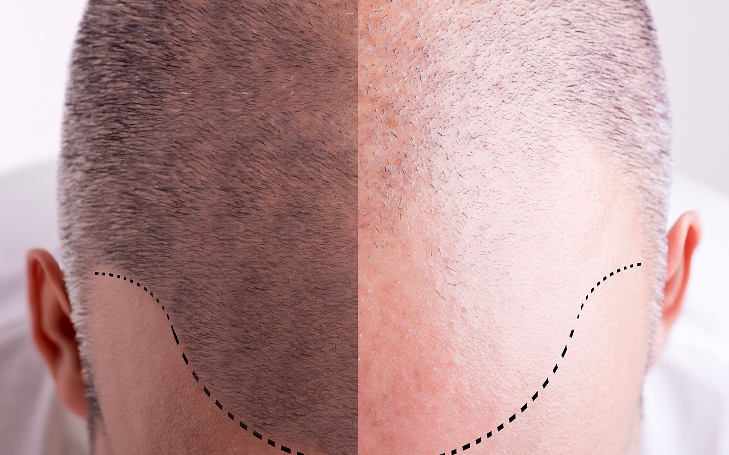 HAIRINK - Pigmentation Capillaire : Les experts de la simulation de cheveux