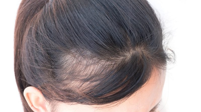 Women And Bald Spots What To Do Blog Keranique