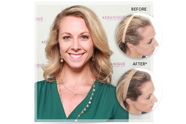 keranique blonde hair results for hair loss