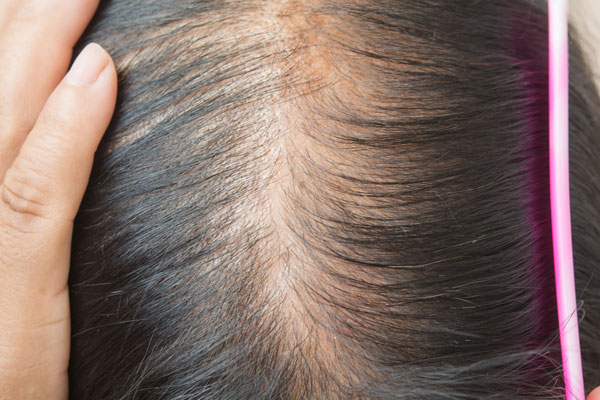 Woman combing hair part to show thinning hair