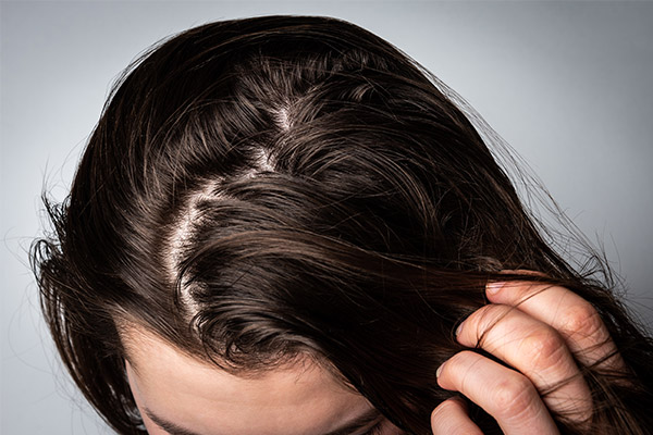 How to Reduce Oil on Your Scalp