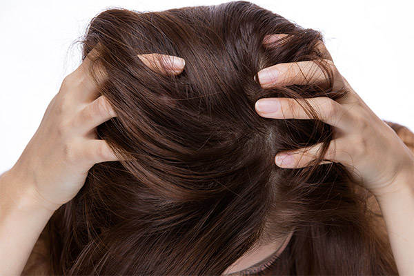 How to Deal with Dandruff and Other Scalp Conditions in the Winter