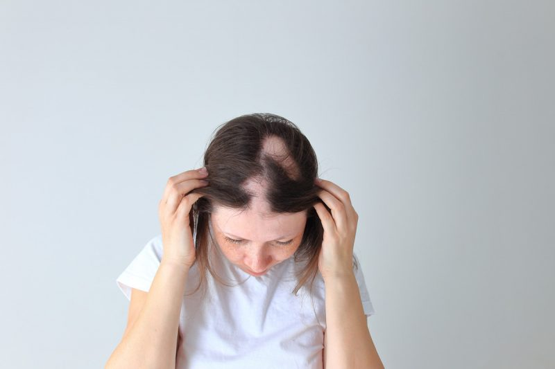 Women with alopicia showing hair loss