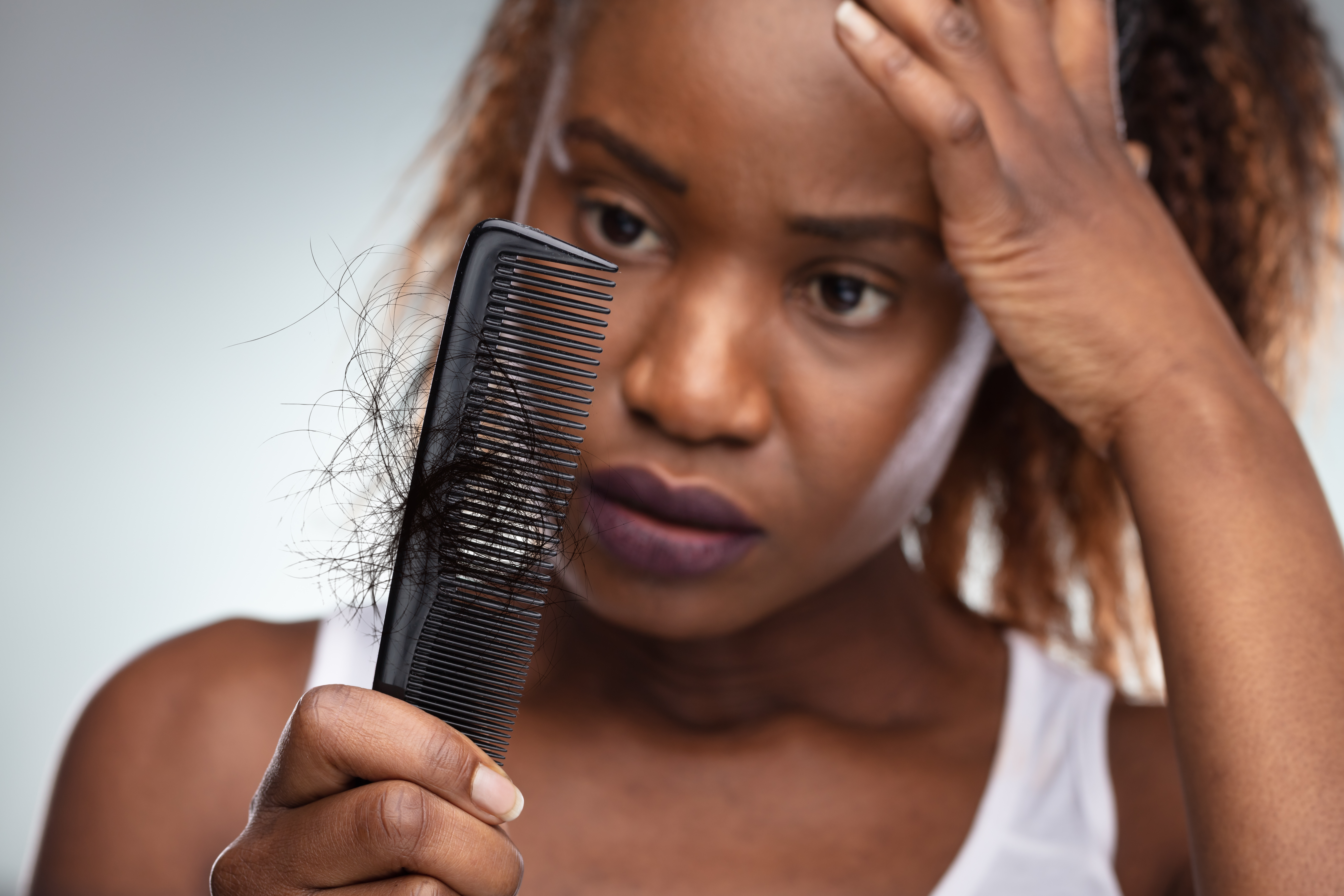Close-up Of Shocked African Woman Suffering From Hair Loss Problem.