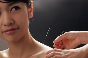 Picture of the Dry Needling's service