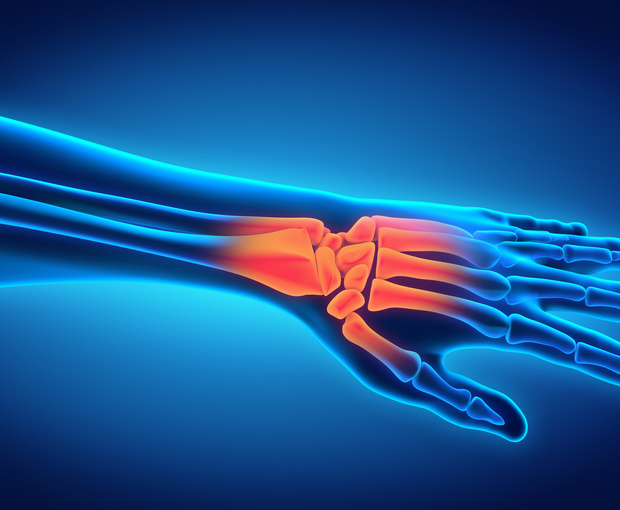 How to Treat Wrist Fractures