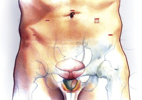 prostate_540x380_157k