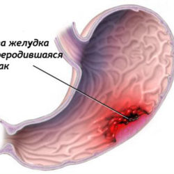 stomach-cancer1