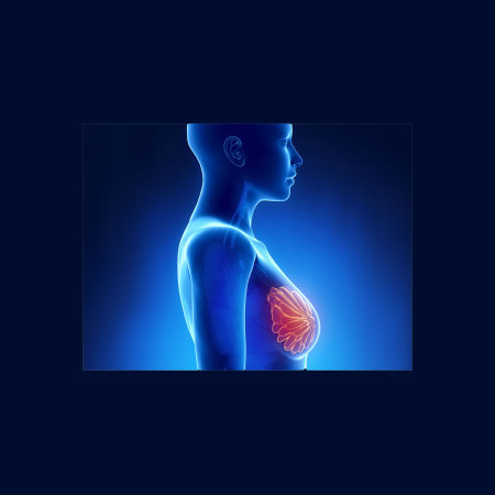 Demystifying-estrogens-role-in-breast-cancer-450x450