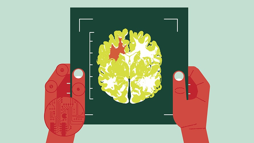 one human hand and one robot hand holding a sheet with what looks like a brain scan
