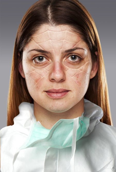 Woman doctor shown with marks on her face from PPE