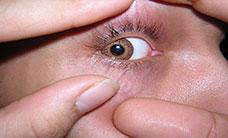 crazy-eye-L1