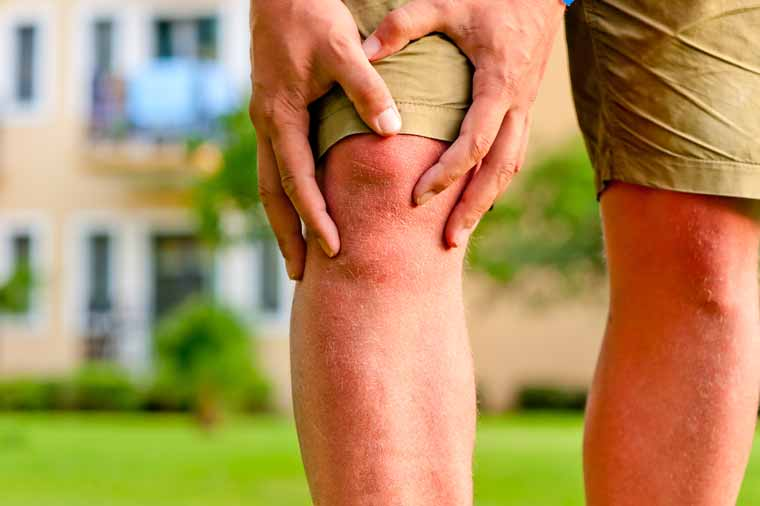 Boswellia & Ginger- A Magical Combo to Combat the Perils of Joint Pain