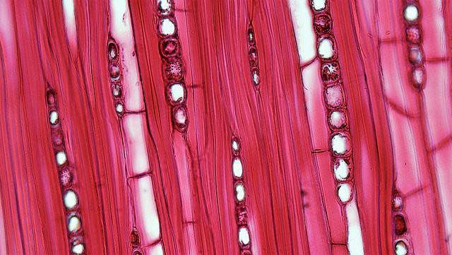 Adults lack stem cells that can repair muscle after heart attack: Study