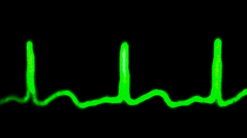 Biomarkers identified to diagnose irregular heart beat