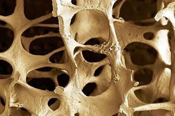 Osteoporosis breakthrough: Bone mass increased by 800 percent