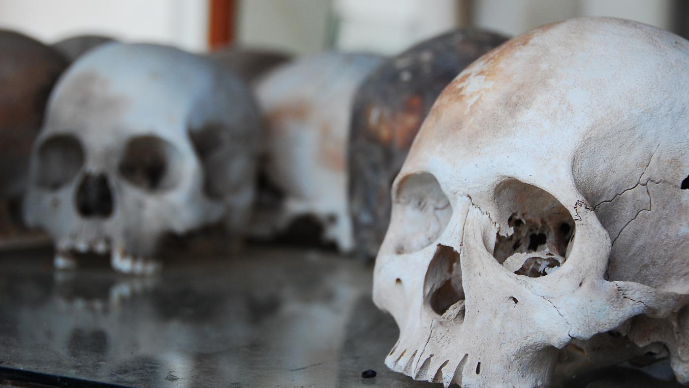 age-skull-stop-growing