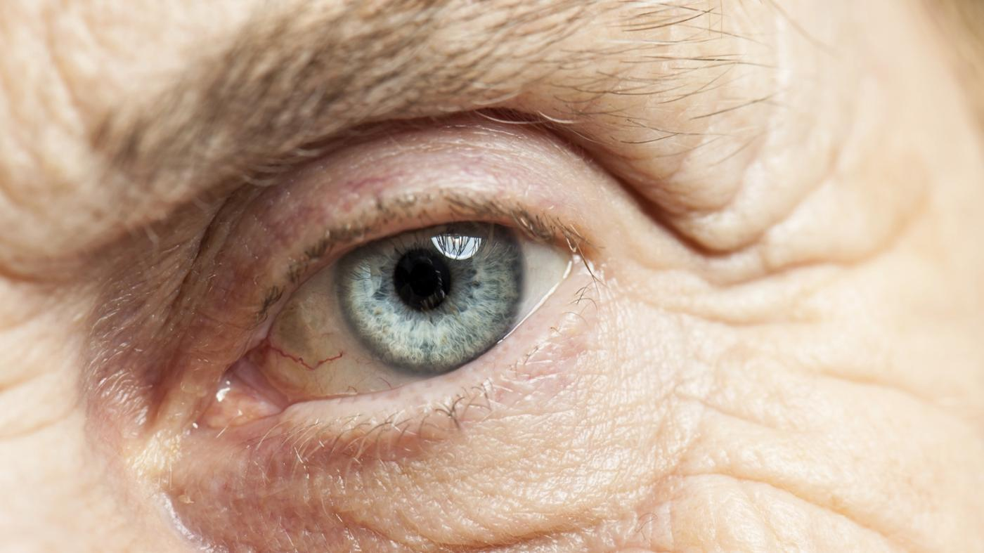 can-one-expect-eyesight-immediately-after-cataract-surgery
