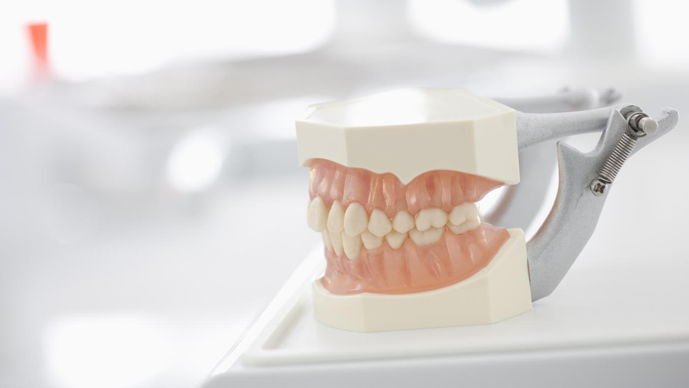 can-use-super-glue-repair-dentures