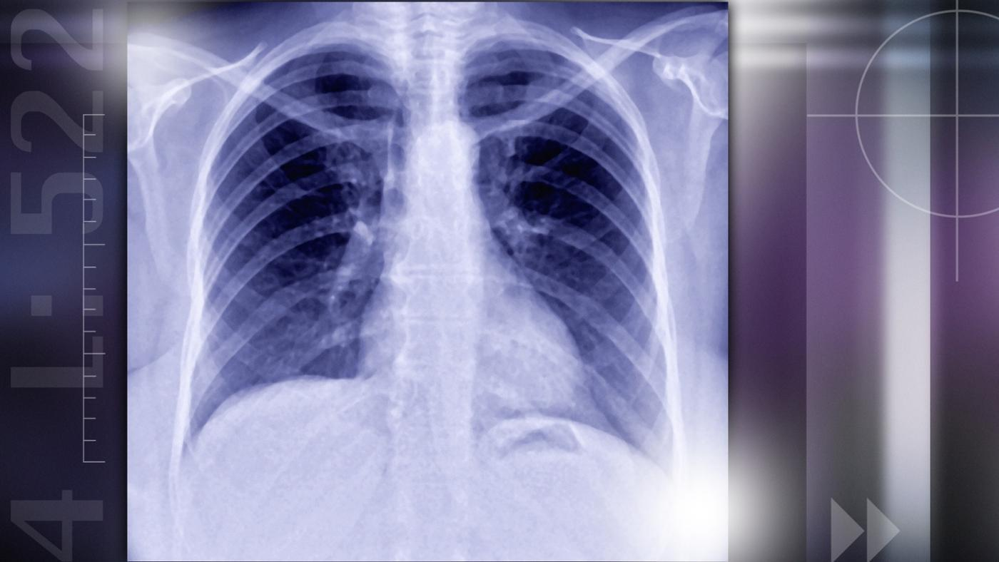 causes-lung-nodules
