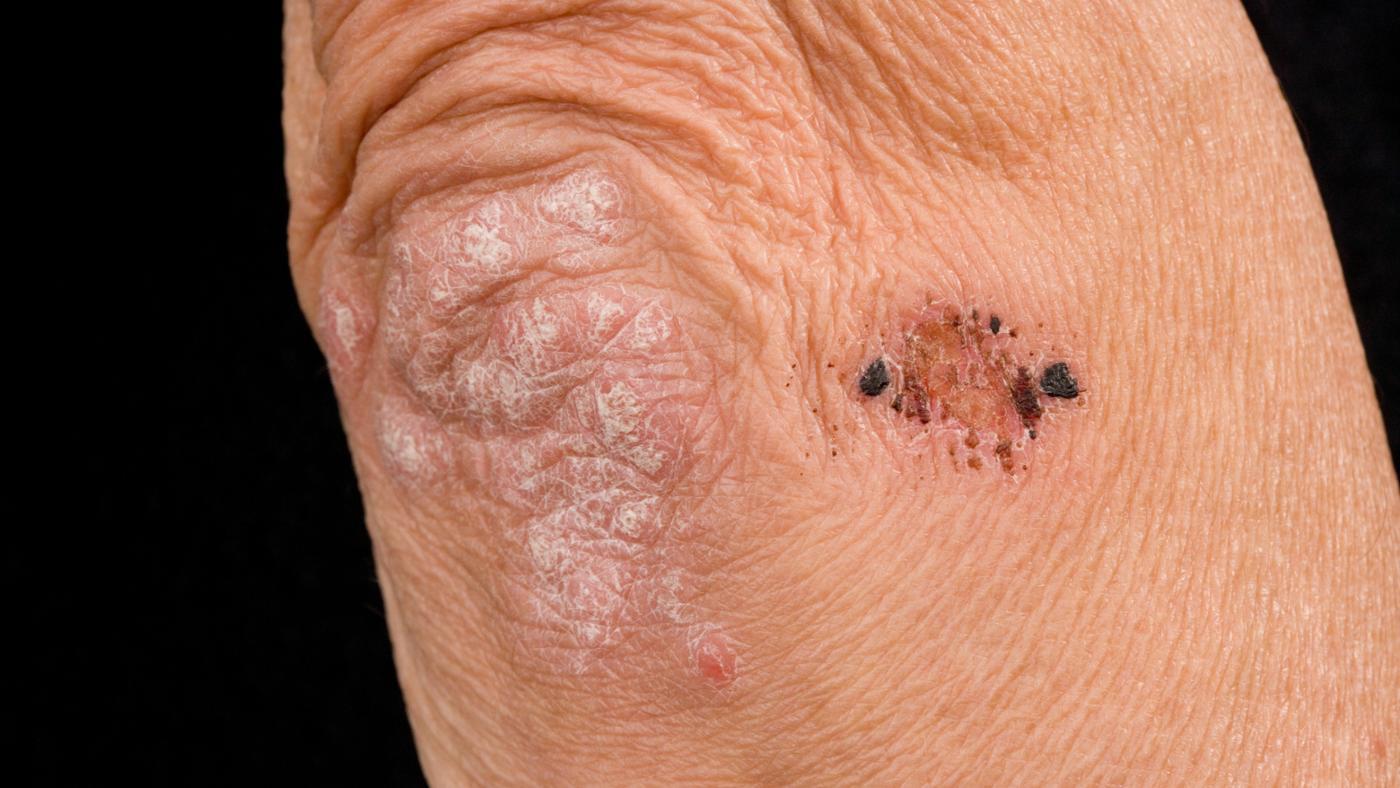 could-cause-blotchy-rash-elbows-knees