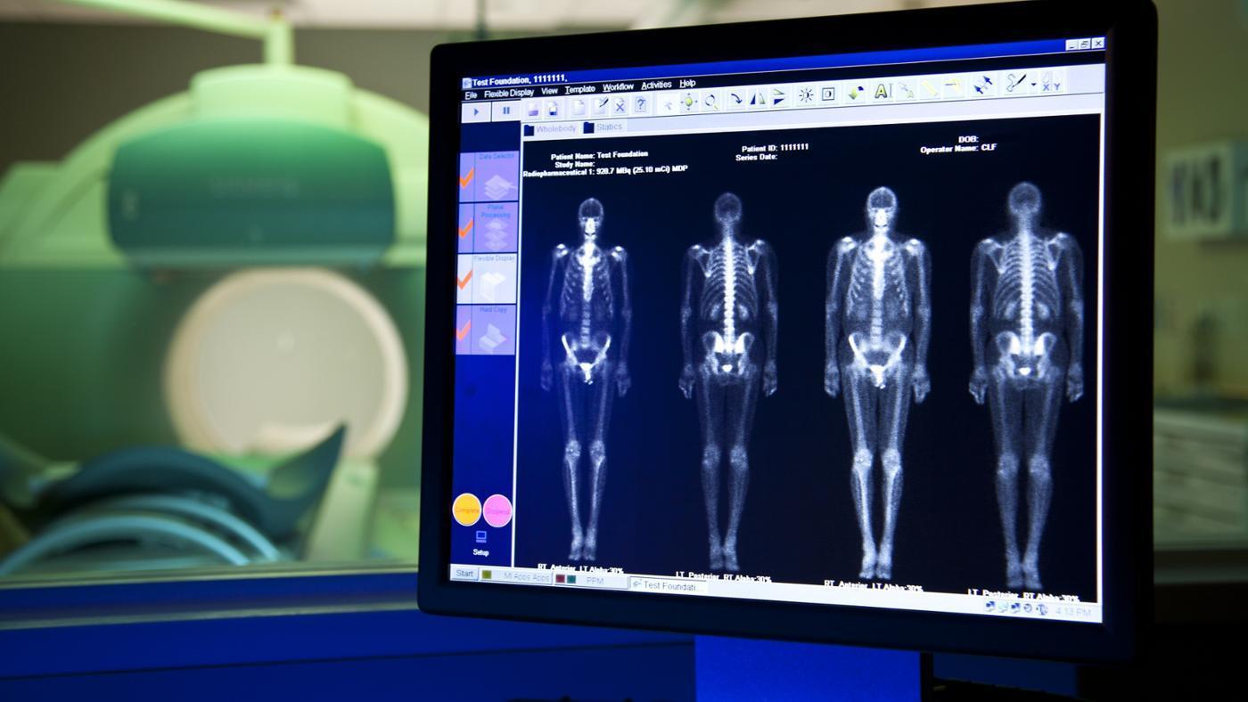 dark-spots-bone-scan-mean