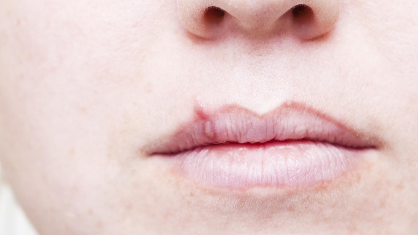 first-sign-lip-cancer