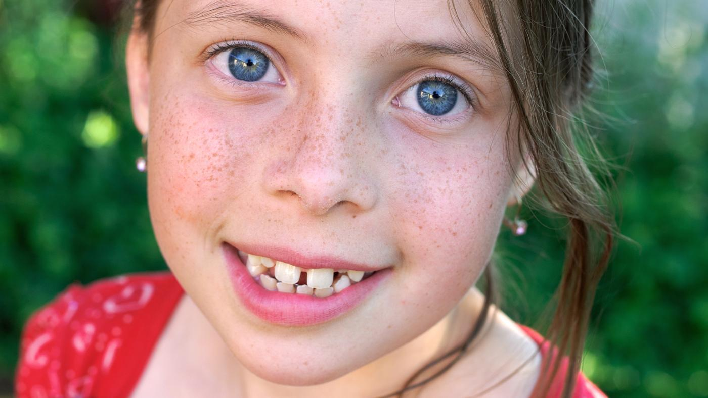 freckles-dominant-recessive-trait