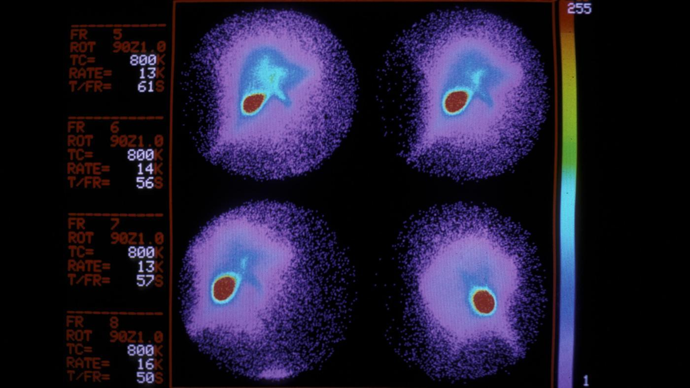liver-hypodensity