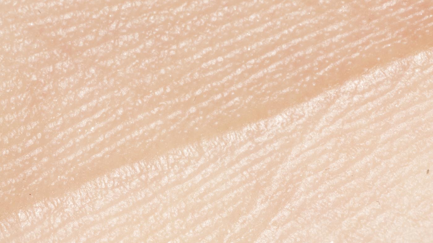 long-skin-replace-itself