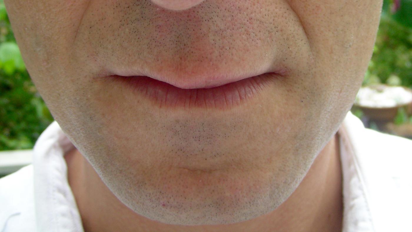long-swollen-lip-last