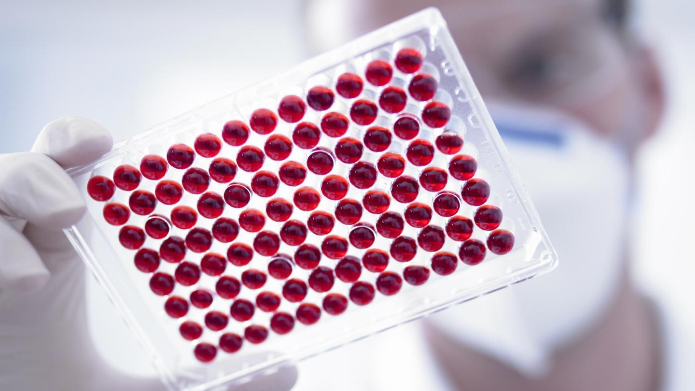 low-mpv-blood-test-mean