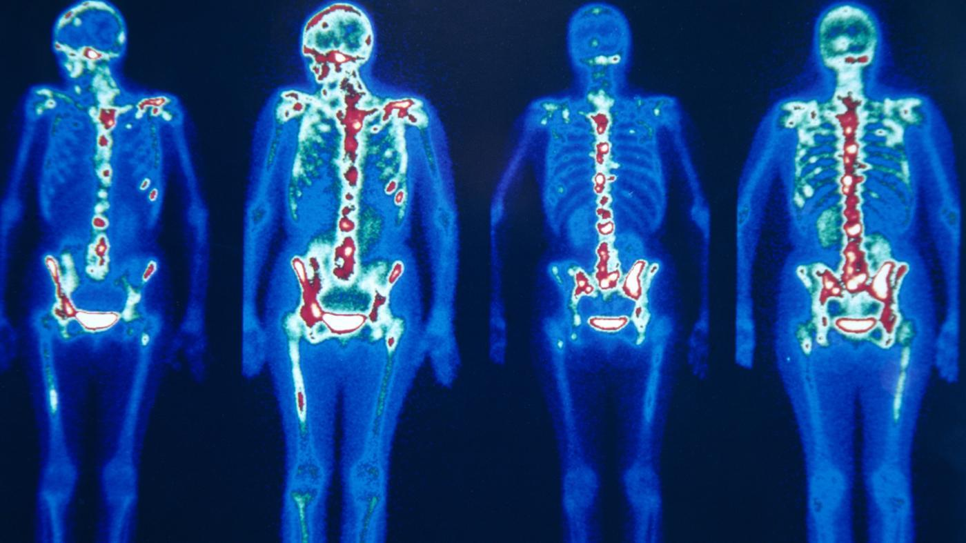 nuclear-bone-scan
