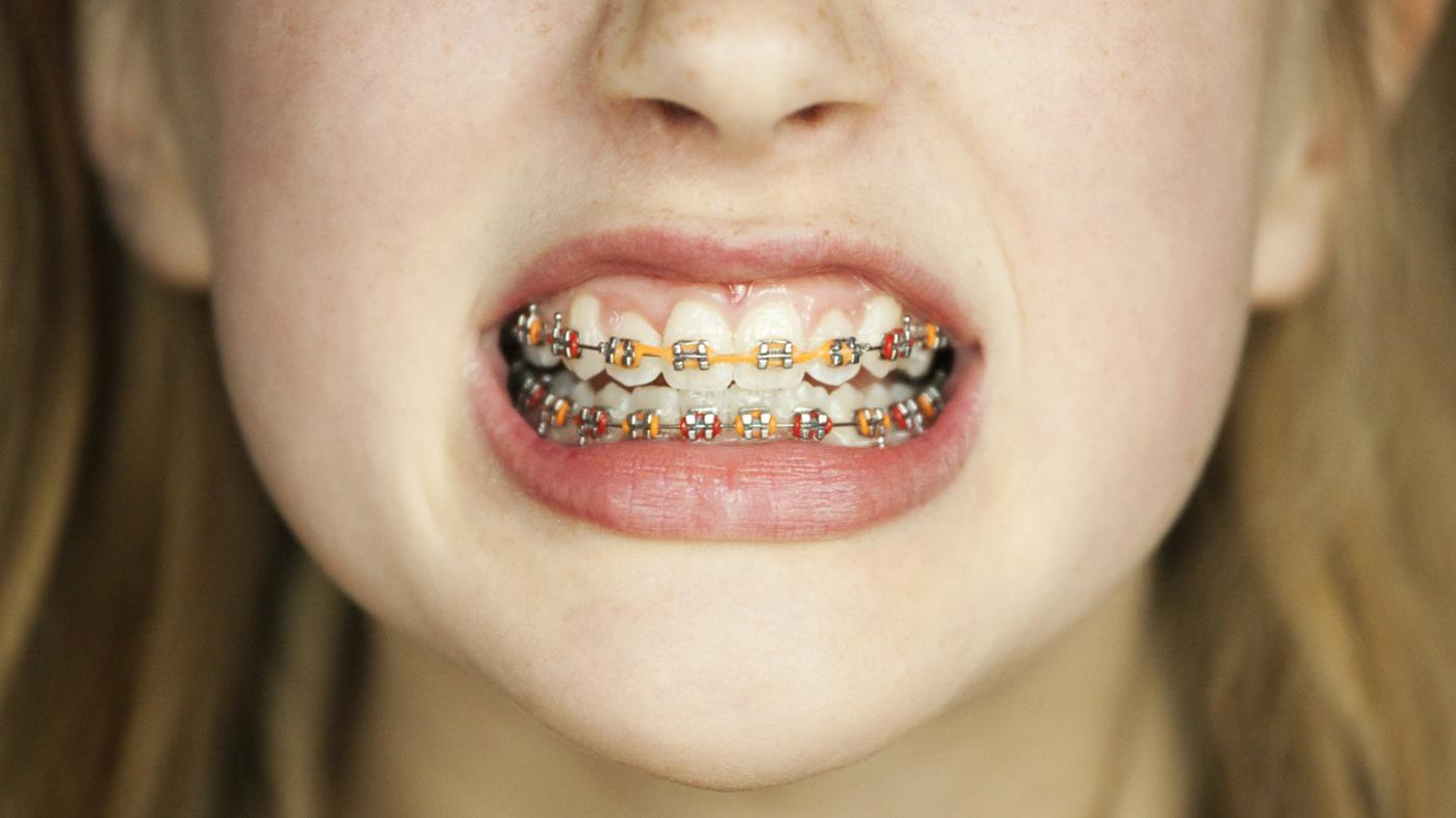 peachcare-cover-braces