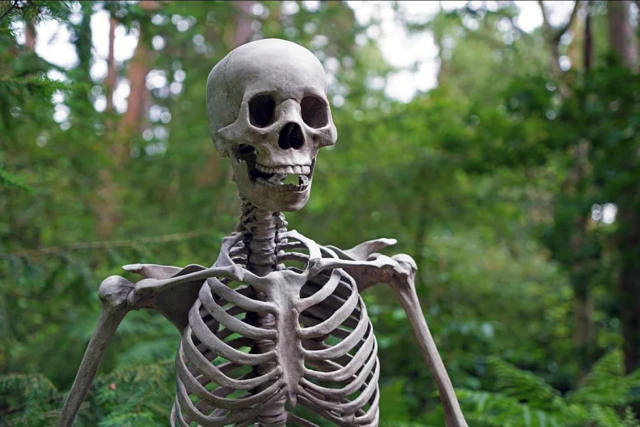 R Skele