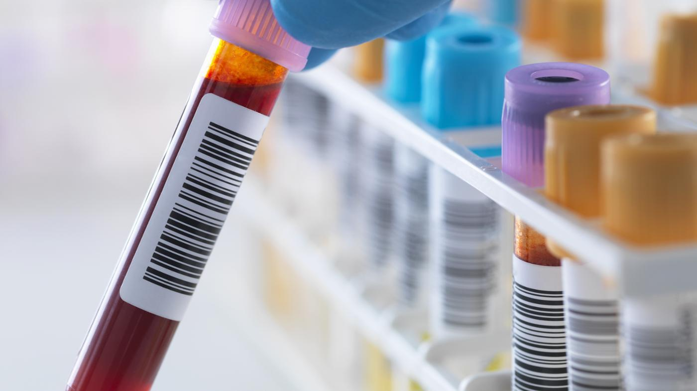 were-blood-tests-required-before-marriage