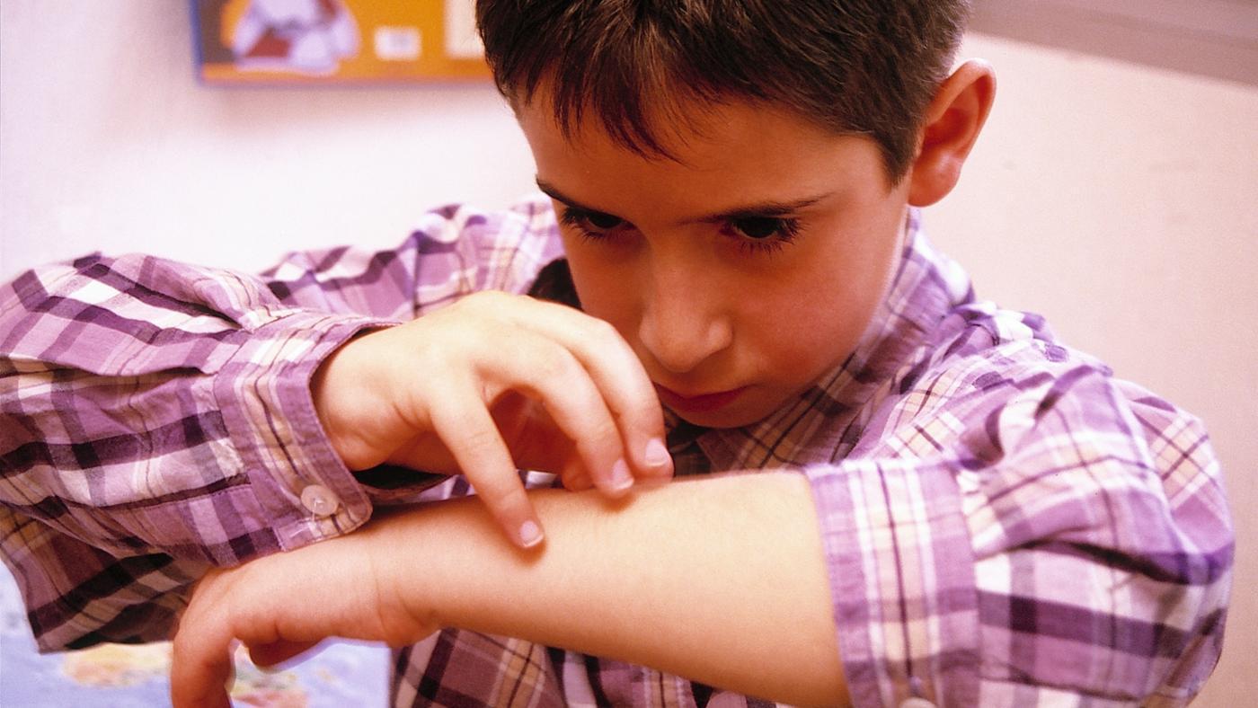 Why Do Bug Bites Itch?