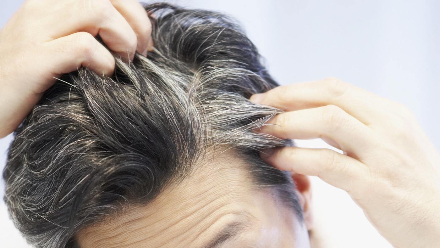 Where Can You Find Pictures of Skin Cancer on the Scalp Online?