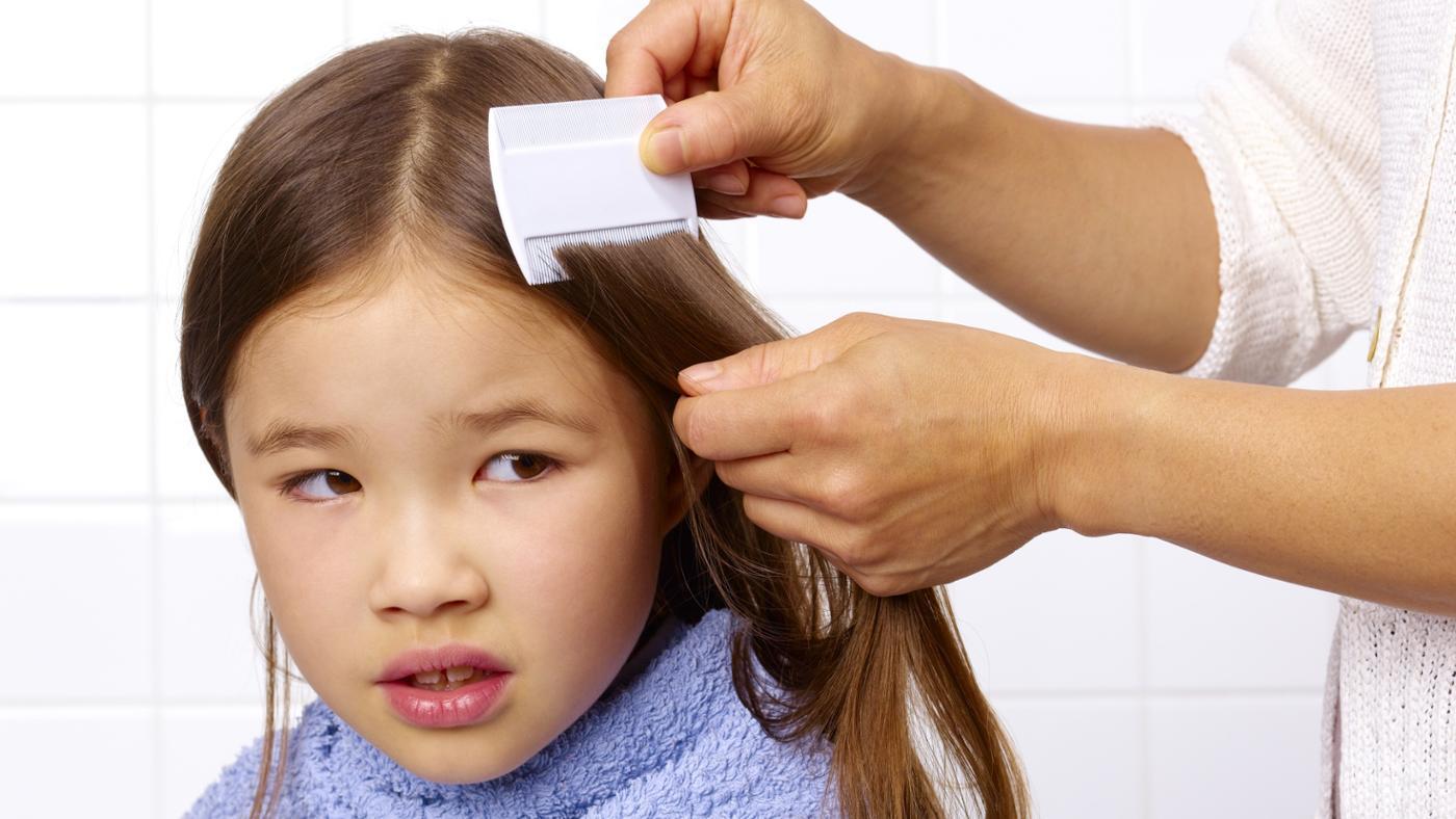 Can Vinegar Kill Head Lice?