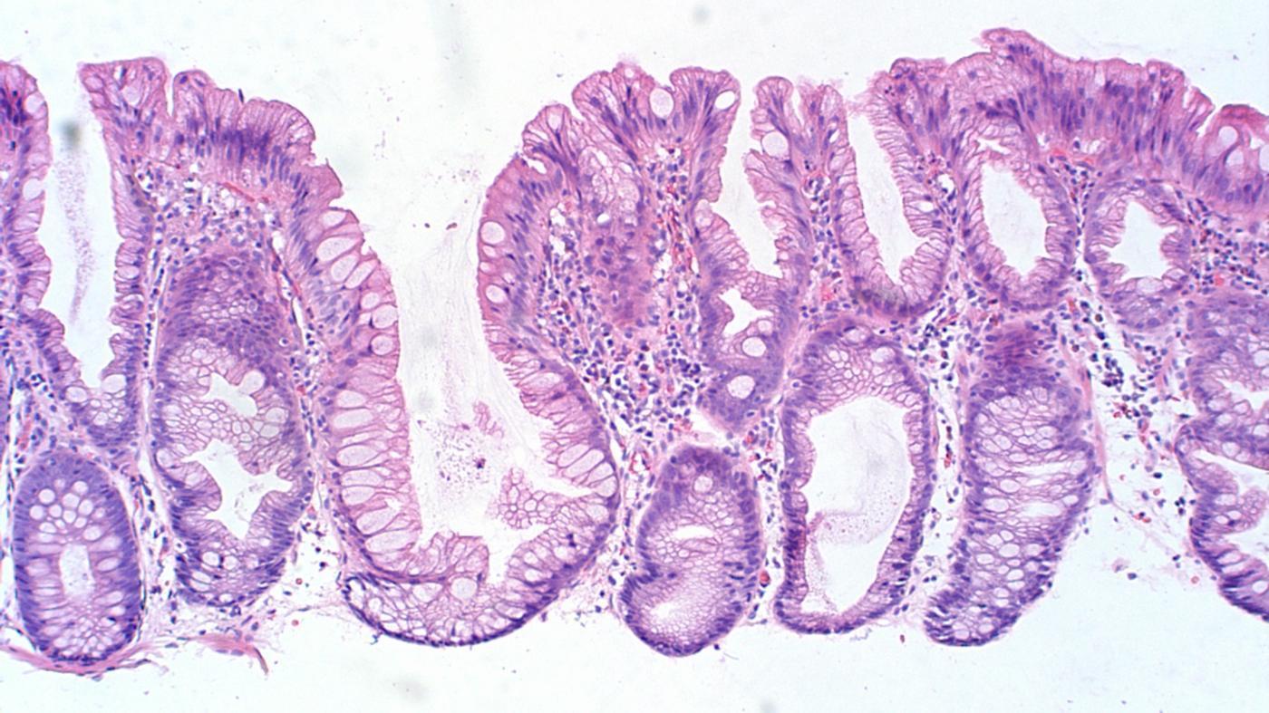 What Causes Colon Polyps?