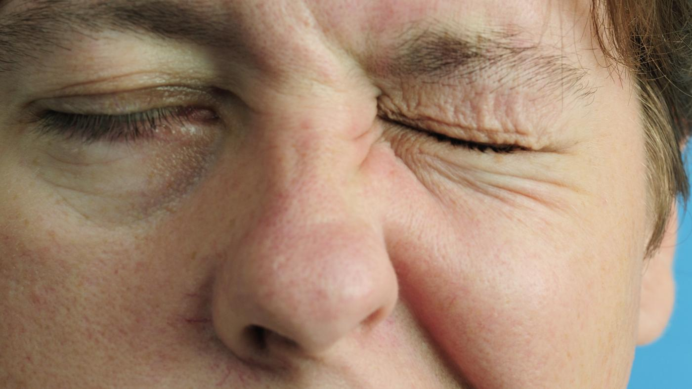 What Are Common Causes of Bell's Palsy in Adults?