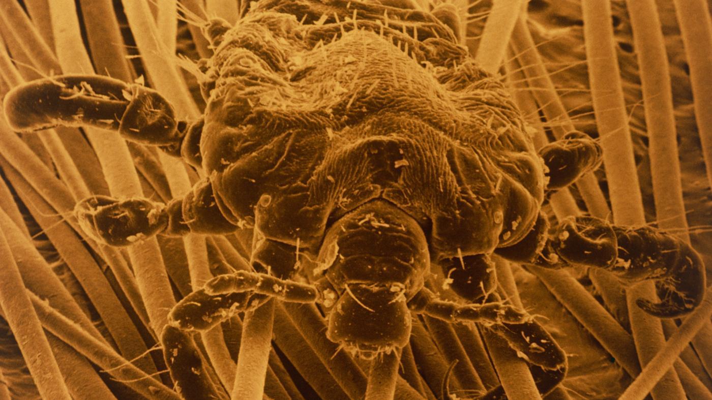 Does Pantene Shampoo Kill Lice?