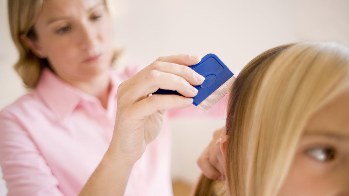 What Is a Good Home Remedy for Head Lice?