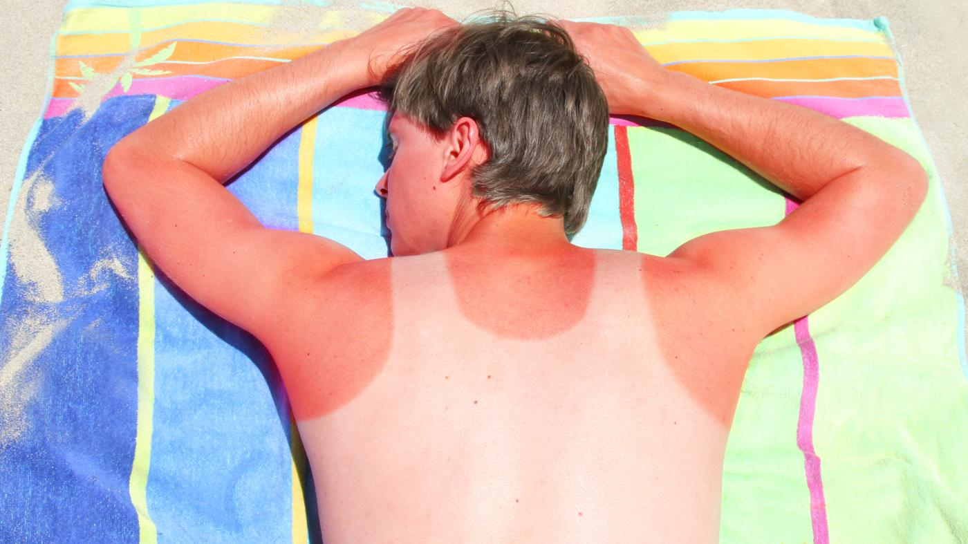 How Does Vinegar Help a Sunburn?