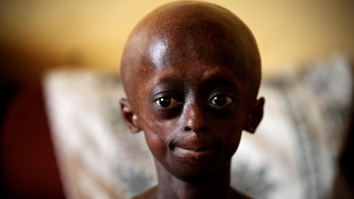 What Limitations Does a Person With Progeria Have?