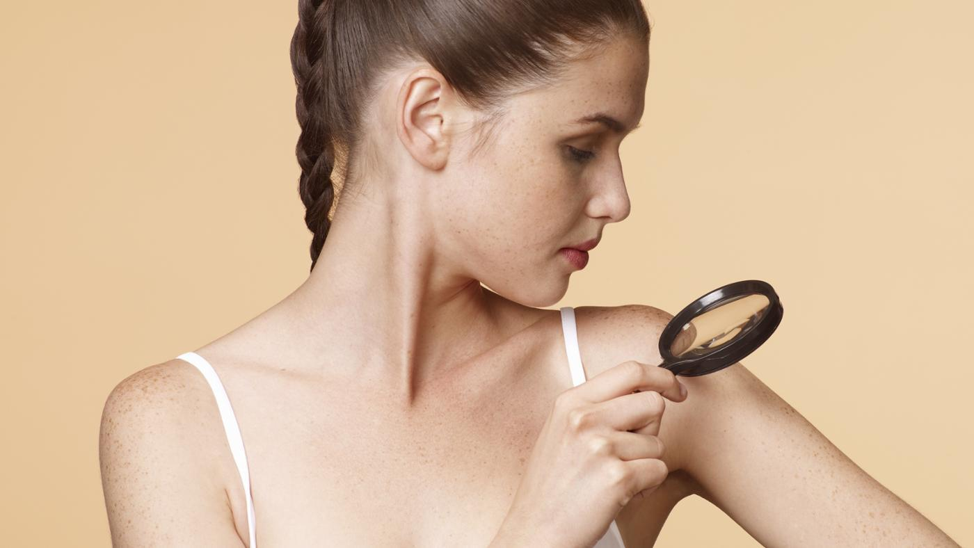 What Are the Main Signs That Someone Has Skin Cancer?