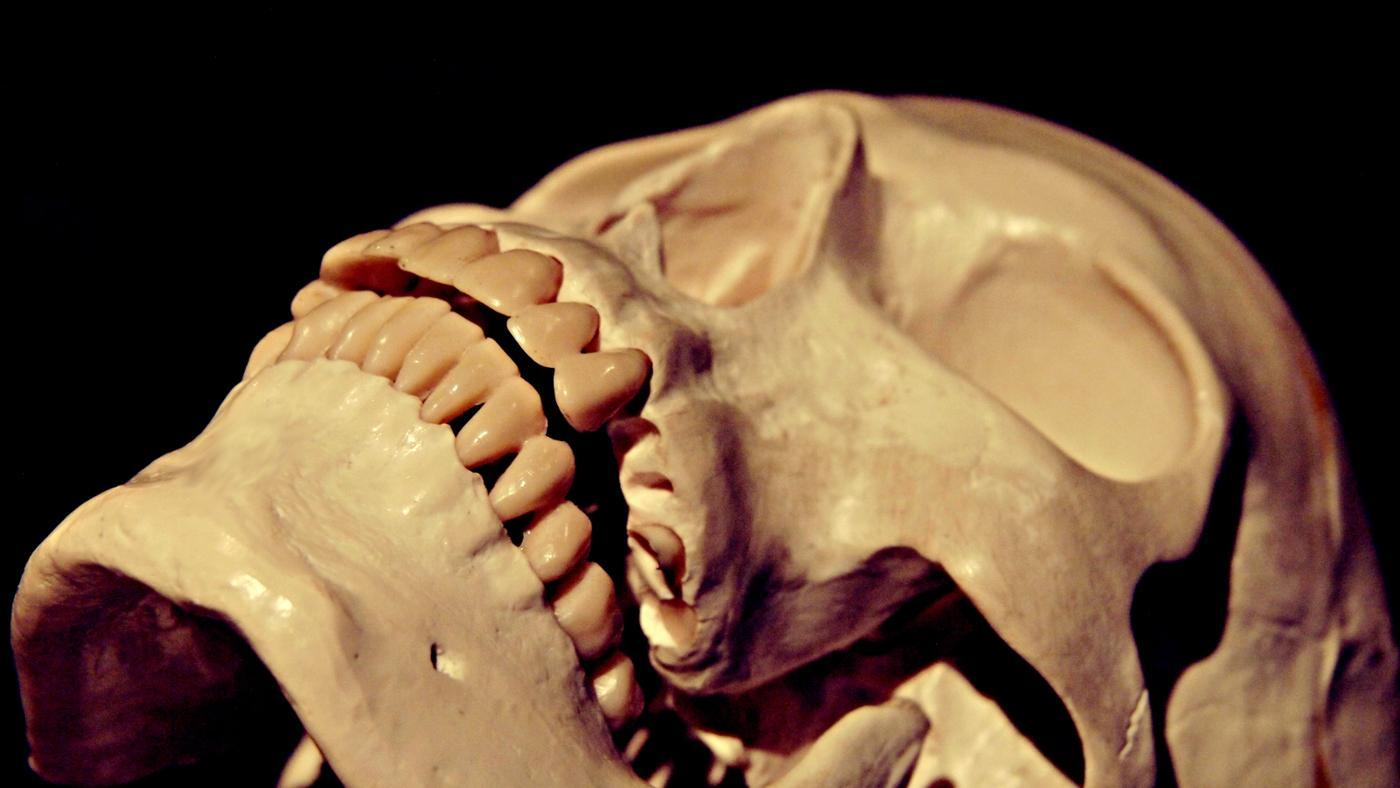 How Much Pressure Can the Human Skull Withstand?